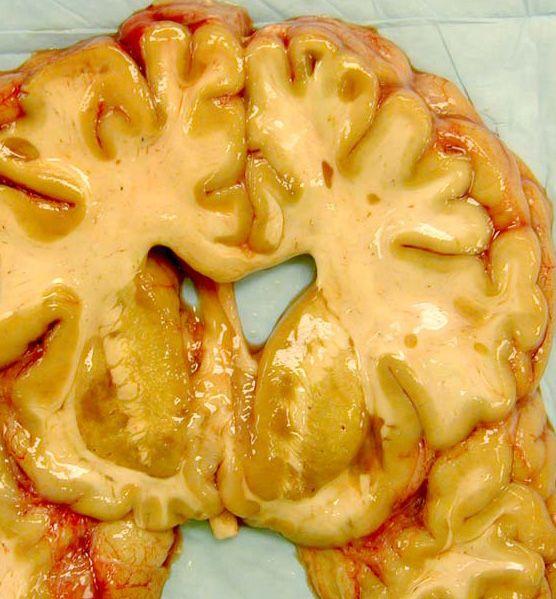КОНСПЕКТЫ ДОКТОРА] Неврология. Рассеянный склероз. Часть I ...