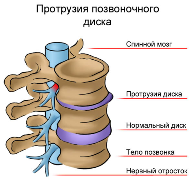 Циркулярно дорсальная протрузия диска