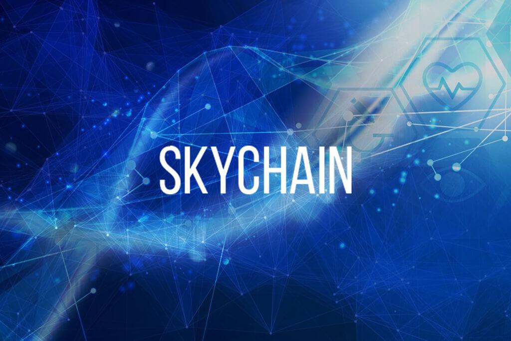 skychain-1.jpg