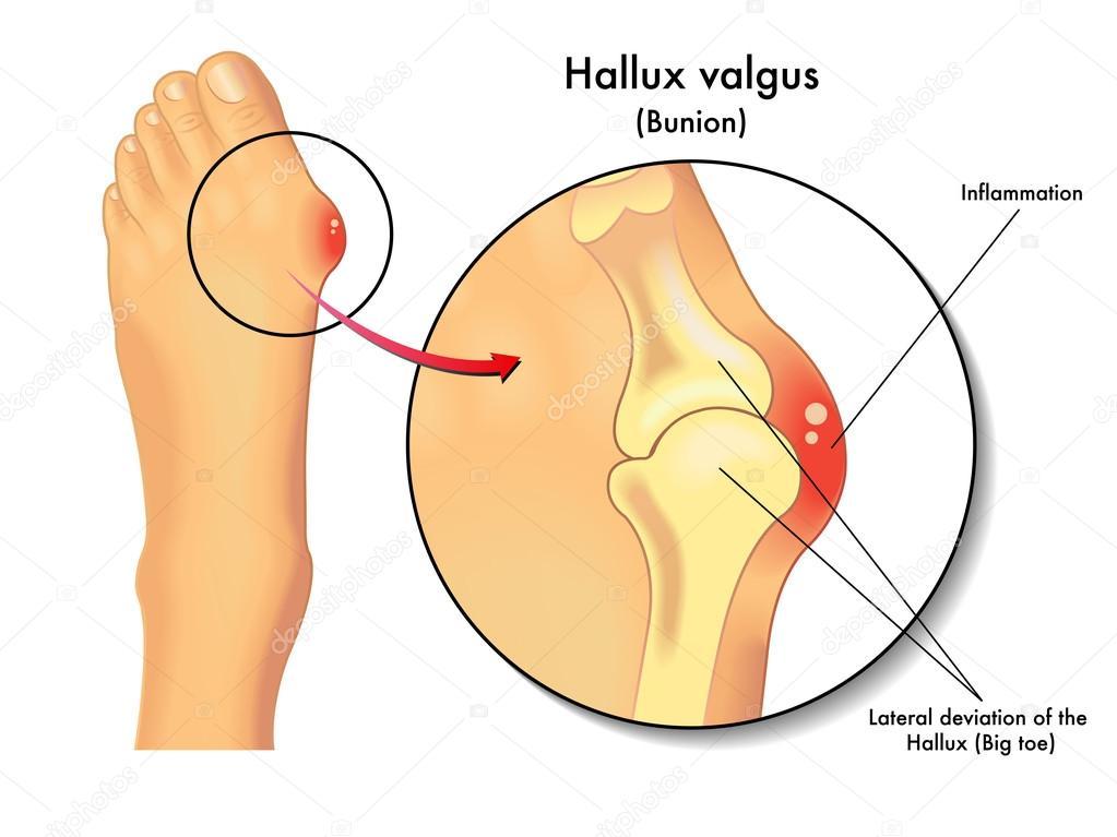 depositphotos_120837460-stock-illustration-hallux-valgus-valgus-deformity-toe.jpg