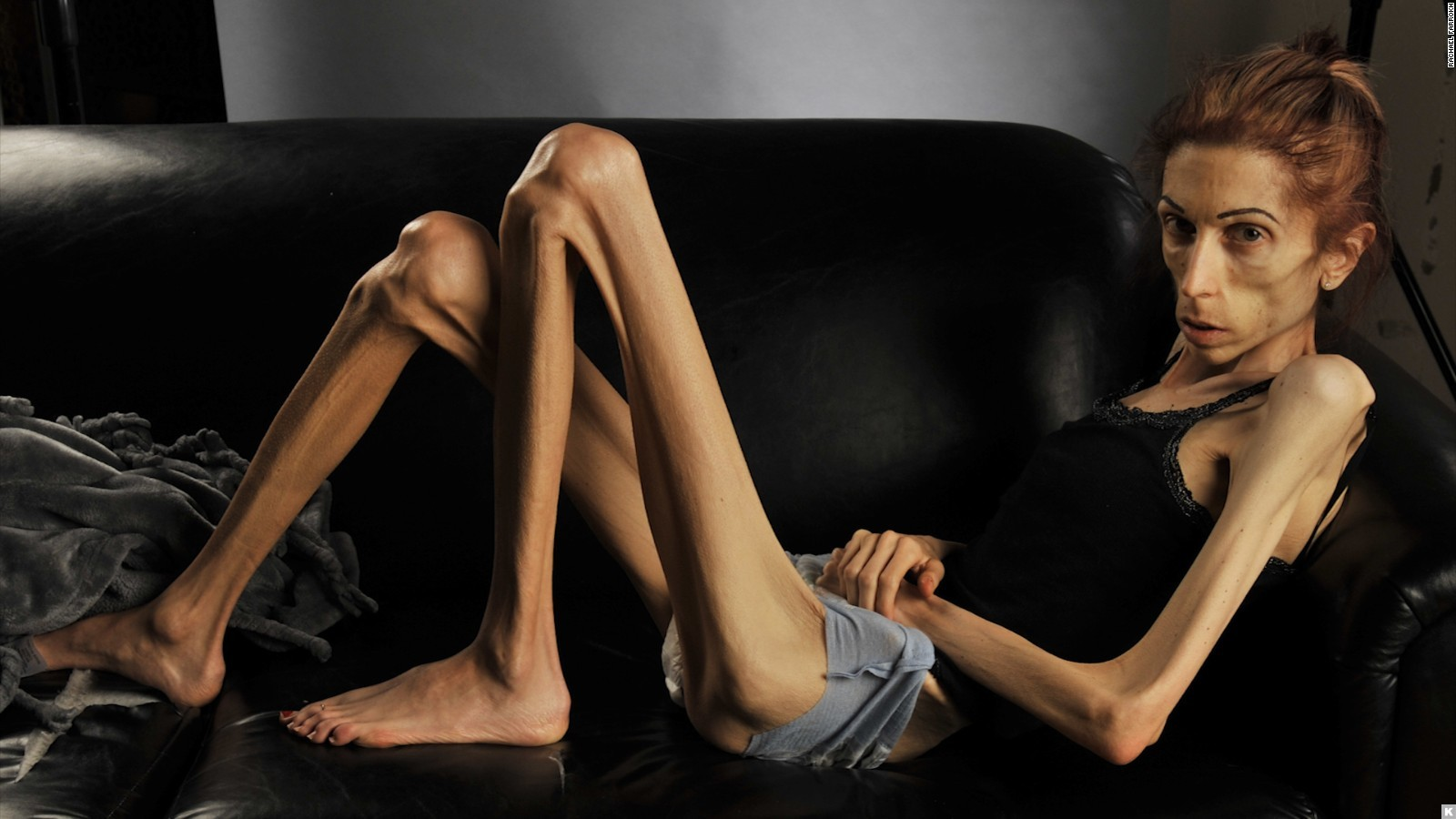 an overview of the mental illness anorexia Anorexia and bulimia nervosa, long a phenomenon in human history are illnesses of the mind not the body the body's emaciation and malnourishment are ancient greeks used to openly practice bulimia when attending lavish feasts wanting to binge on as much of the expensive food as possible, people.
