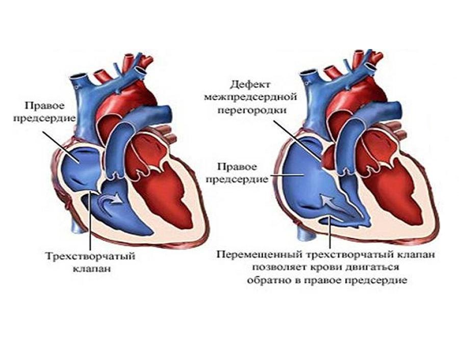 Ангиокардиографическая диагностика дефектов аортолегочной перегородки
